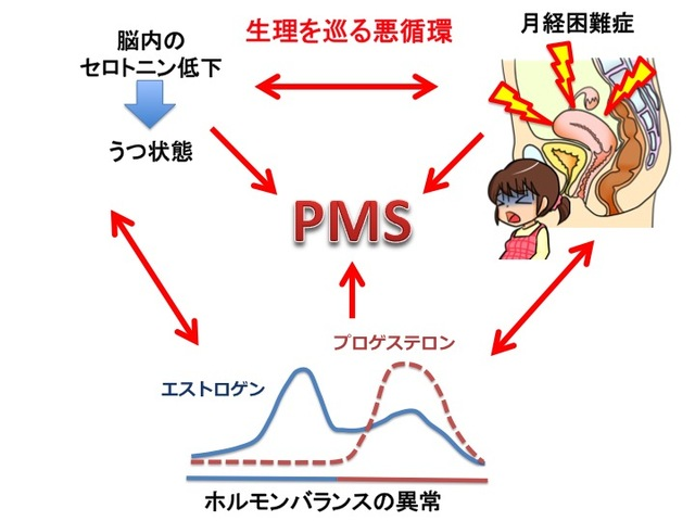 【産婦人科医が解説】生理前のイライラ・頭痛…月経前症候群(PMS)とは