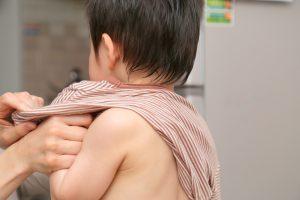 《保護者必見》子どもの「あせも」に効果のある市販薬の選び方【皮膚科医監修】