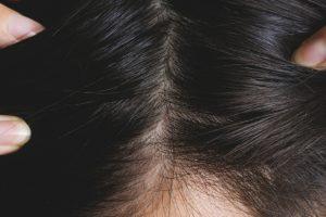 【薬剤師が選ぶ!】人気育毛剤 おすすめ3選!育毛剤の選ぶポイントと注意点を解説【2020年】